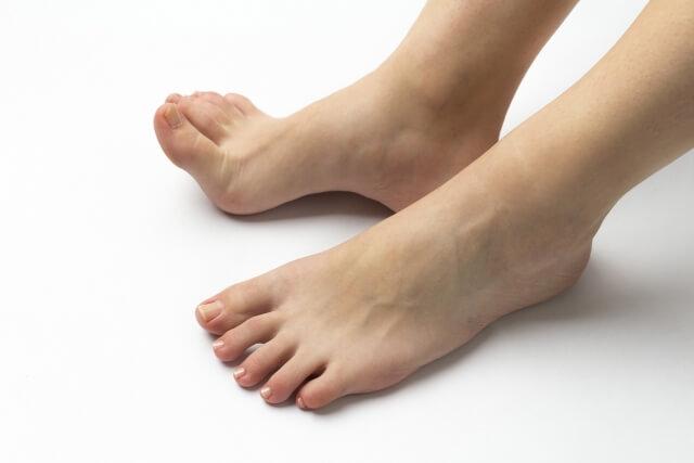 通気性の良くない靴を履かずに潰さないこと=放置することが最も効果的な水ぶくれの処置・治し方