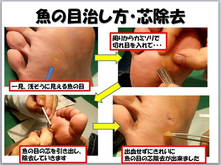 魚の目の皮膚科での治療方法・治し方