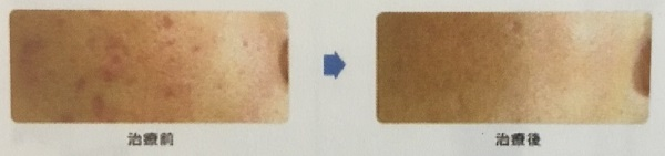 フラクショナルレーザーのニキビ跡のクレーター・凹凸に対する効果