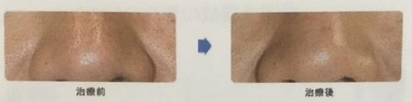 フラクショナルレーザーの毛穴の開き・黒ずみに対する効果