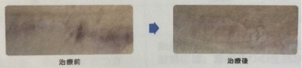 フラクショナルレーザーの傷跡に対する効果