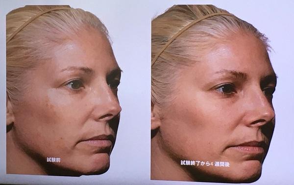 トリアスキンエイジングケアレーザーの肌の質感・小じわに対する効果