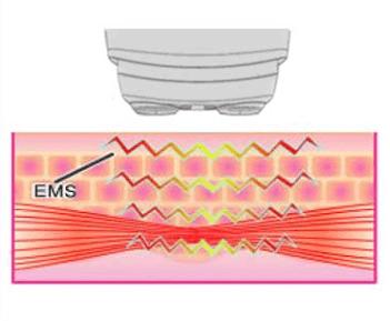 フェイスポンププレミアムのEMSの微弱電流が筋肉を刺激